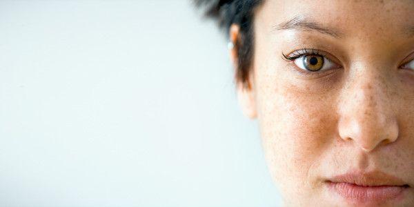 alles wat je moet weten over huidschade