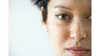 Alles wat je moet weten over pigmentvlekken