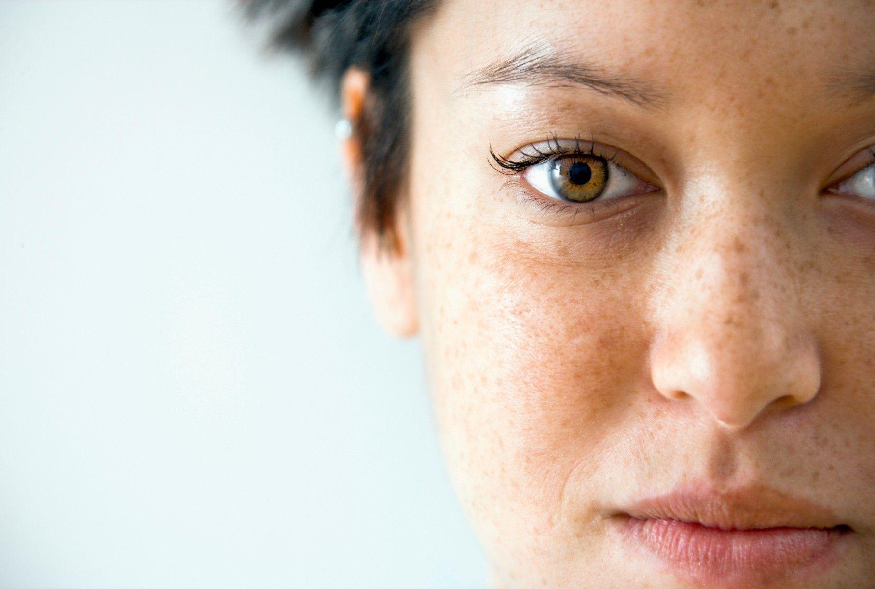 Gezicht hyperpigmentatie
